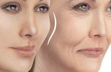 نتایج تزریق ژل صورت