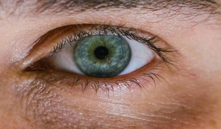 جلوگیری از بروز خطوط زیر چشم